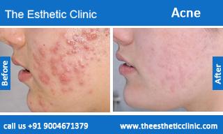 acne-treatment-before-after-photos-mumbai-india-1 (4)