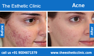 acne-treatment-before-after-photos-mumbai-india-1 (5)
