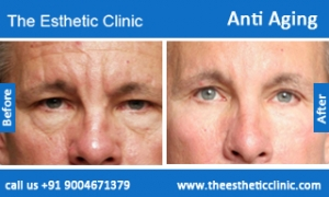 Anti-Aging-treatment-before-after-photos-mumbai-india-1 (1)