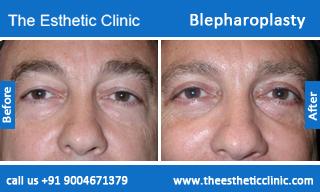 Blepharoplasty-before-after-photos-mumbai-india-2