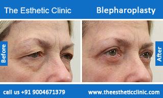 Blepharoplasty-before-after-photos-mumbai-india-4