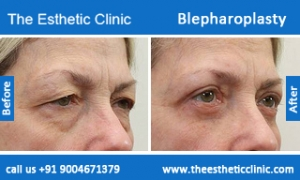 Blepharoplasty-before-after-photos-mumbai-india-4