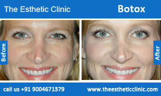 botox-before-after-photos-mumbai-india-1