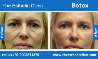 botox-before-after-photos-mumbai-india-5