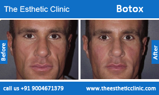 botox-before-after-photos-mumbai-india-6