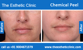 Chemical-Peel-treatment-before-after-photos-mumbai-india-1 (4)