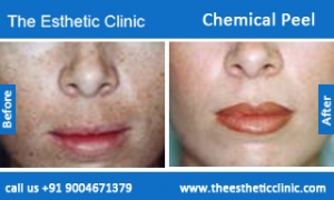 Chemical-Peel-treatment-before-after-photos-mumbai-india-1 (2)