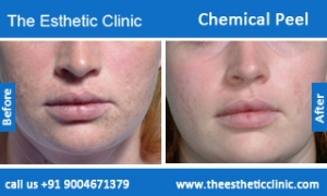 Chemical-Peel-treatment-before-after-photos-mumbai-india-1 (3)