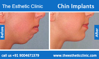 Chin-Implants-before-after-photos-mumbai-india-2