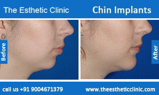 Chin-Implants-before-after-photos-mumbai-india-5