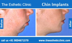 Chin-Implants-before-after-photos-mumbai-india-4