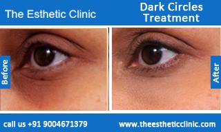 Dark-Circles-treatment-before-after-photos-mumbai-india-1 (5)
