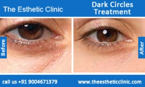 Dark-Circles-treatment-before-after-photos-mumbai-india-1 (6)