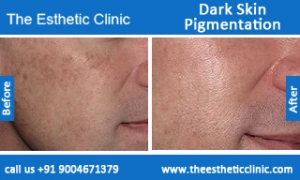 Dark-Skin-Pigmentation-treatment-before-after-photos-mumbai-india-1 (1)