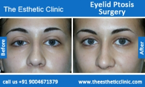 Eyelid-Ptosis-Surgery-before-after-photos-mumbai-india-1