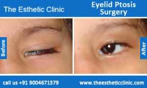 Eyelid-Ptosis-Surgery-before-after-photos-mumbai-india-2