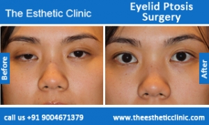 Eyelid-Ptosis-Surgery-before-after-photos-mumbai-india-3