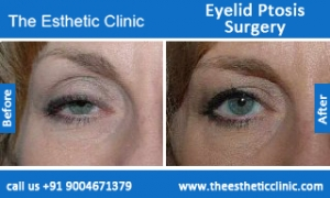 Eyelid-Ptosis-Surgery-before-after-photos-mumbai-india-5