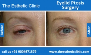 Eyelid-Ptosis-Surgery-before-after-photos-mumbai-india-6