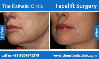 facelift-surgery-before-after-photos-mumbai-india-5