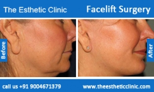 facelift-surgery-before-after-photos-mumbai-india-1