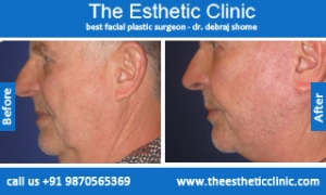 facelift-surgery-before-after-photos-mumbai-india-2