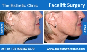 facelift-surgery-before-after-photos-mumbai-india-6