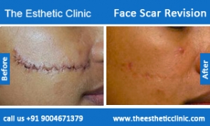 face-scar-revision-before-after-photos-mumbai-india-2