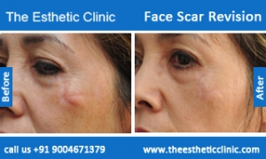 face-scar-revision-before-after-photos-mumbai-india-3