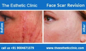 face-scar-revision-before-after-photos-mumbai-india-6