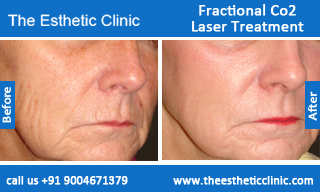 Fractional-Co2-Laser-treatment-before-after-photos-mumbai-india-1 (1)
