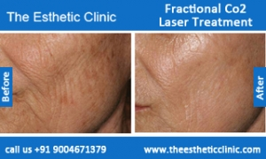 Fractional-Co2-Laser-treatment-before-after-photos-mumbai-india-1 (4)