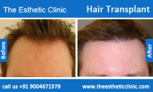 hair-transplant-before-after-photos-mumbai-india-1