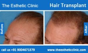 hair-transplant-before-after-photos-mumbai-india-2