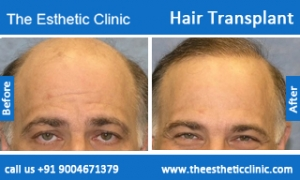 hair-transplant-before-after-photos-mumbai-india-3