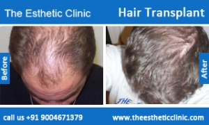 hair-transplant-before-after-photos-mumbai-india-5