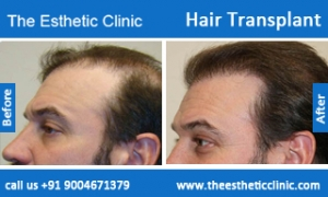 hair-transplant-before-after-photos-mumbai-india-6