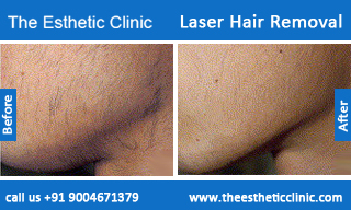 Laser-Hair-Removal-treatment-before-after-photos-mumbai-india-1 (1)