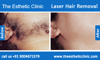 Excess Face Body Hair Causes Treatments