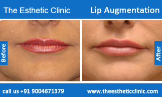 lip-augmentation-before-after-photos-mumbai-india-2