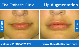 lip-augmentation-before-after-photos-mumbai-india-4