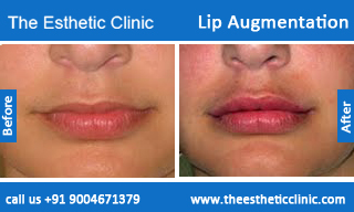 lip-augmentation-before-after-photos-mumbai-india-6