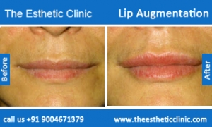 lip-augmentation-before-after-photos-mumbai-india-5