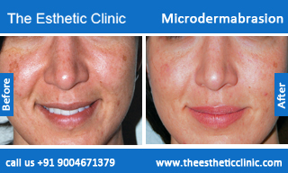 microdermabrasion-treatment-before-after-photos-mumbai-india-1 (5)