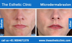 microdermabrasion-treatment-before-after-photos-mumbai-india-1 (6)