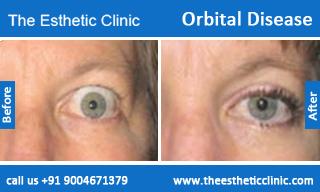 Orbital-Disease-before-after-photos-mumbai-india-1