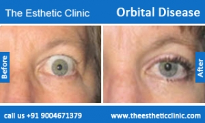 Orbital-Disease-before-after-photos-mumbai-india-1