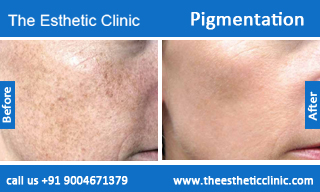 Pigmentation-treatment-before-after-photos-mumbai-india-1 (1)