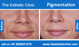 Pigmentation-treatment-before-after-photos-mumbai-india-1 (3)