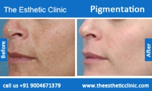 Pigmentation-treatment-before-after-photos-mumbai-india-1 (6)